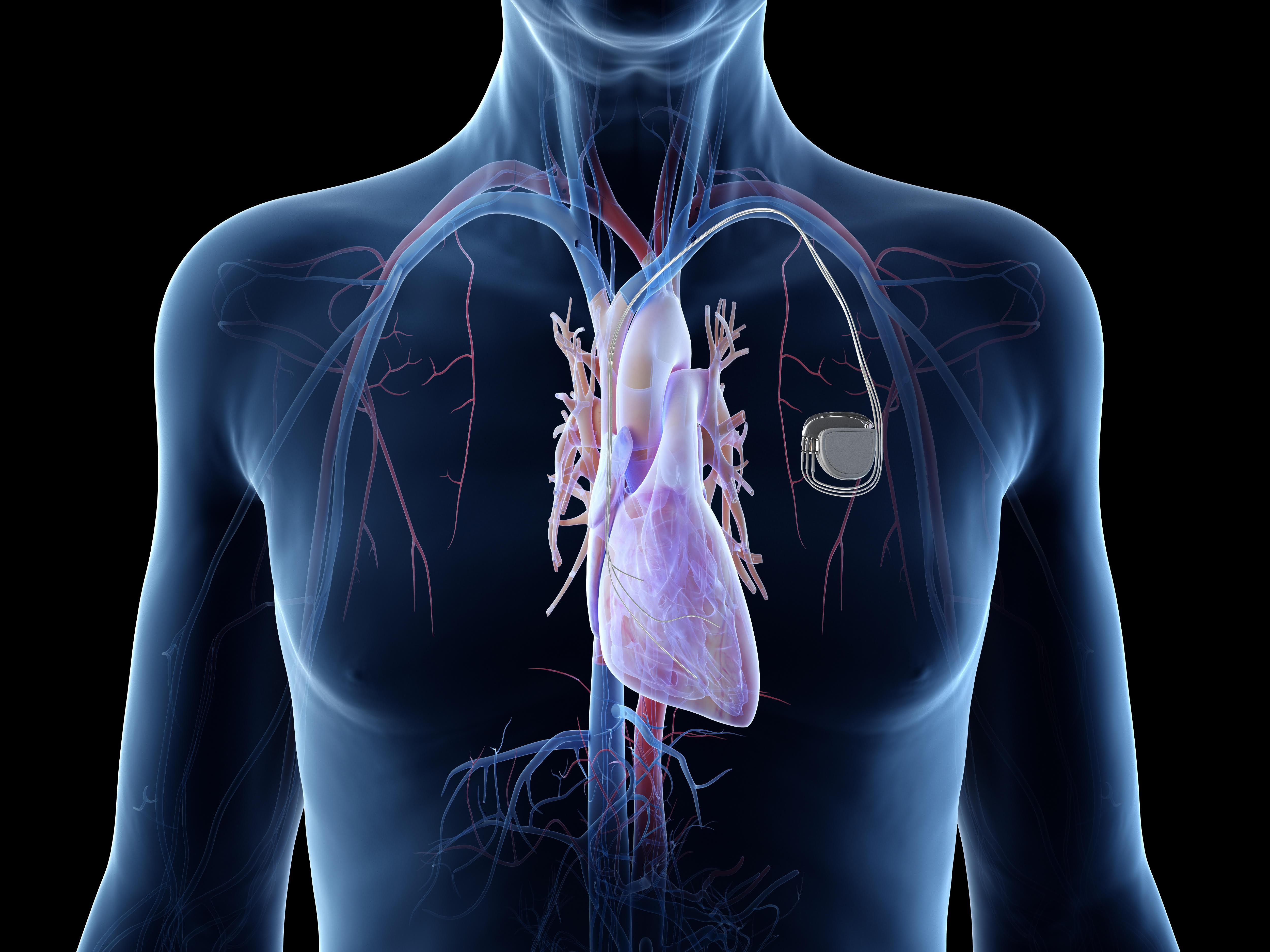 grafika kardiostimulátora v tele pacienta