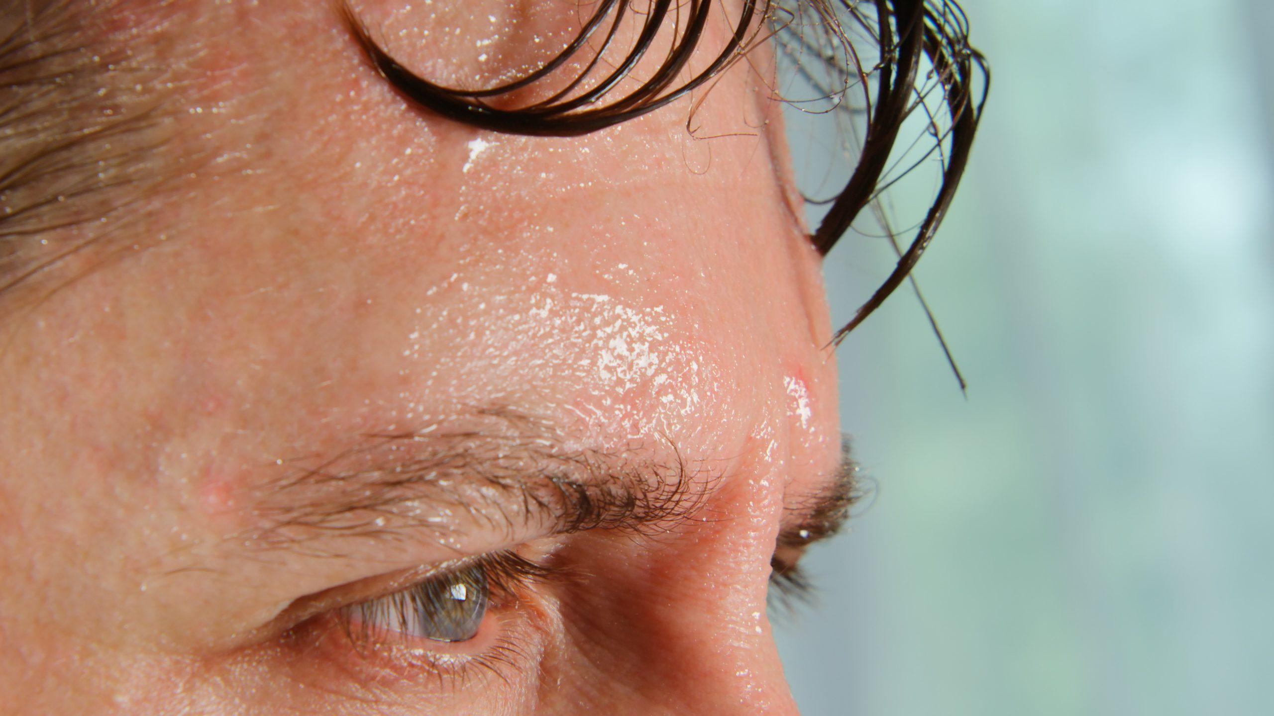 detail na mužovo spotené čelo