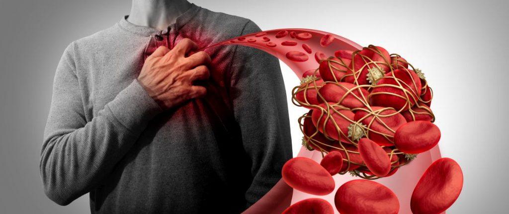 grafické znázornenie krvnej zrazeniny