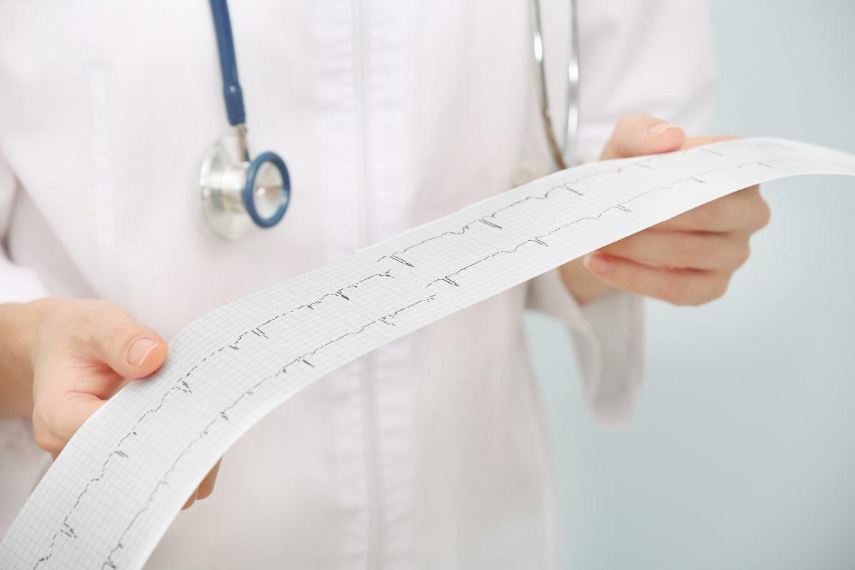 doktorka držiaca výsledok EKG