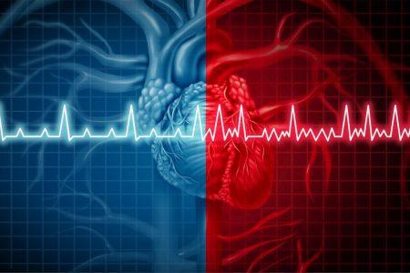 fibrilácia predsiení srdca